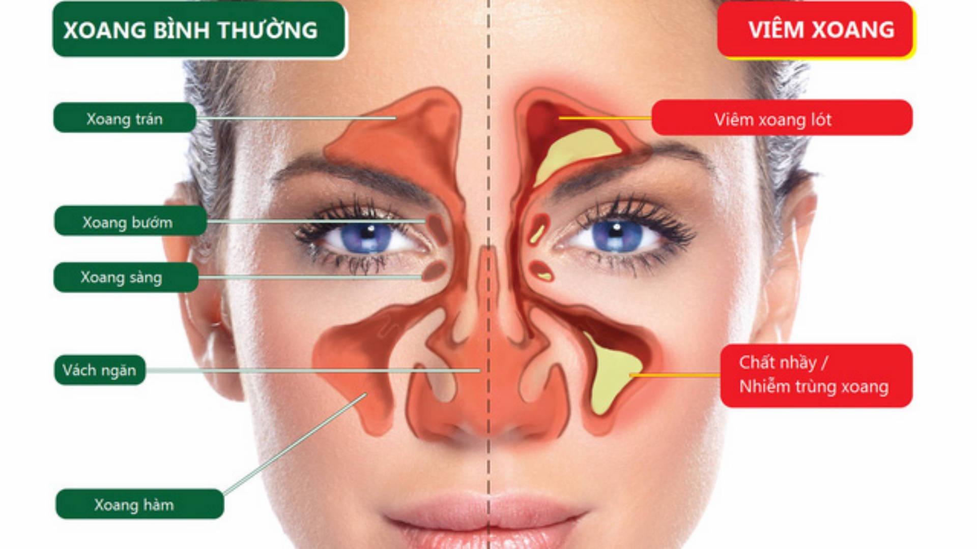 Phản hồi từ khách viêm xoang, viêm mũi dị ứng 15 năm đã khỏi